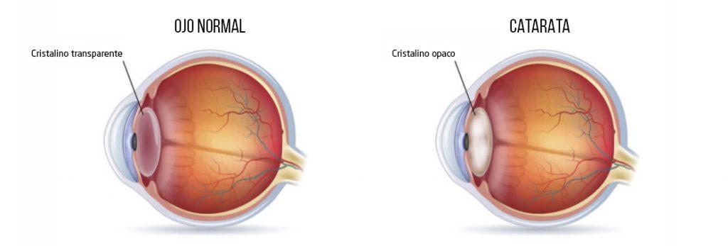 Ojos con Cataratas