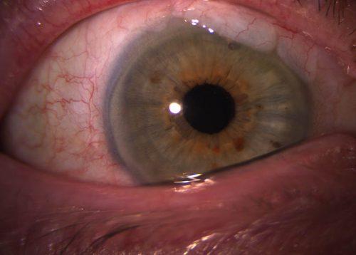 revision-glaucoma-fuengirola